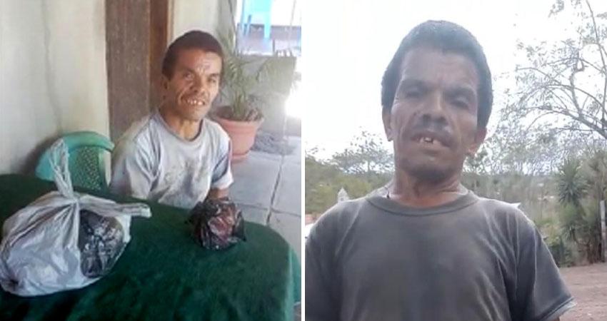 Juancito se quedó sin familia y ahora se enfrenta a problemas de salud. Su situación económica es precaria y pobladores piden ayuda para él en Pueblo Nuevo.